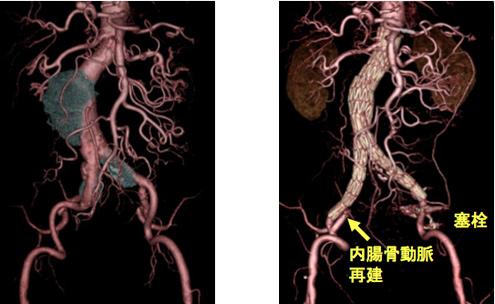 大動脈ステントグラフト -