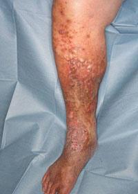 下肢静脈瘤|診療内容|名古屋大...